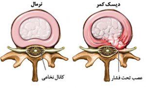 herniated_disc-300x181