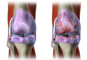osteoarthritiscropped_1189599-860x595-300x208