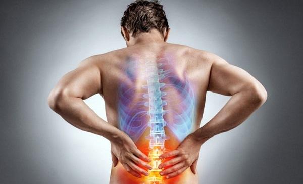 درمان قطعی سیاتیک و دیسک کمر