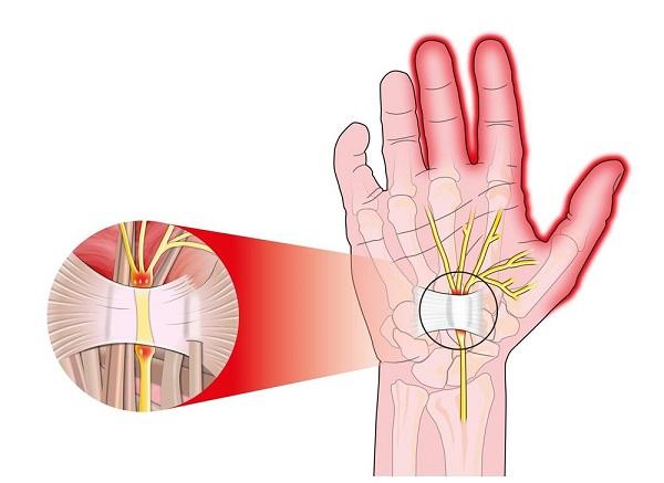 علت بی حس شدن انگشتان دست راست