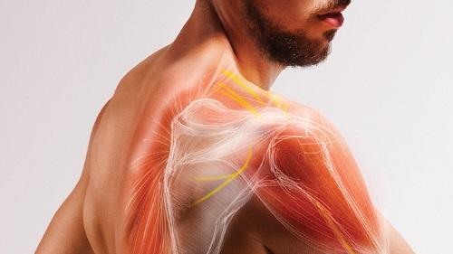 گرفتگی عضلات پشت کتف