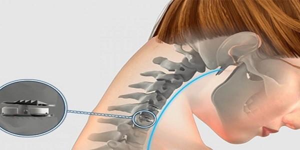 درمان سریع دیسک گردن